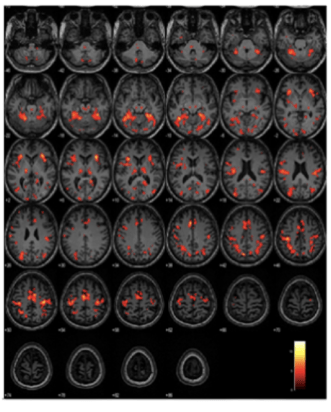 Healthy Neuroimaging