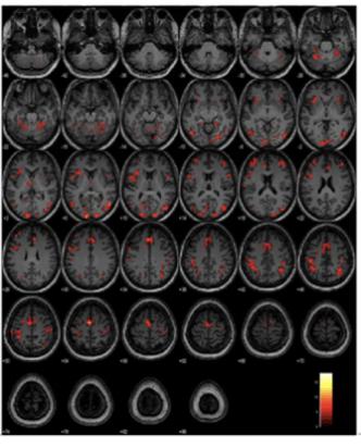 MCI Participants Neuroimaging