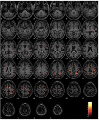 AD Participants Neuroimaging